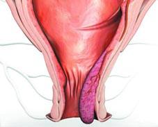Боль внизу живота слева отдает в заднем проходе у женщин