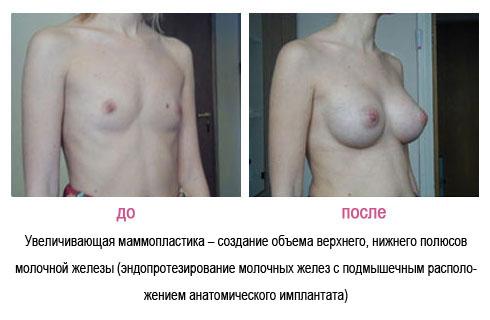 Ужасы силиконовой груди