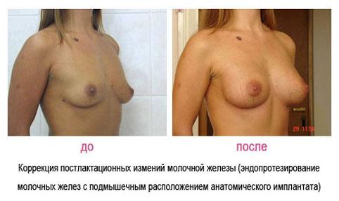 У девушки с маленькой грудью плюсы и минусы