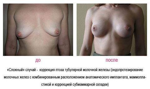Обработка швов на груди после операции