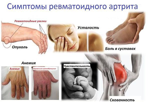 ревматоидный артрит роды сайтец, вам